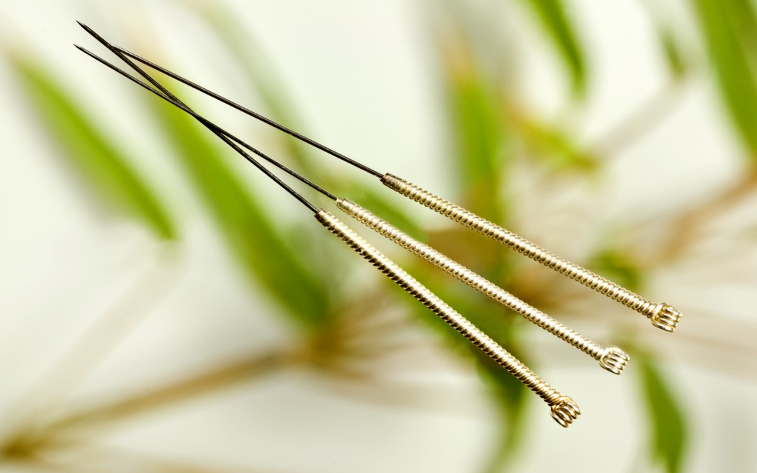Acupuncture – An Introduction and How it Works